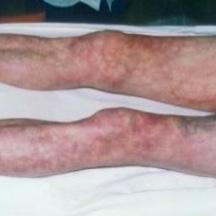 Покраснение кожи на ногах | Покраснение кожи рук: причины покраснения
