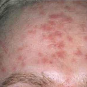 Сифилис кожи: симптомы, диагностика
