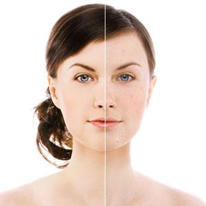 Маски для лица с эфирными маслами | Домашние маски