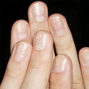 Полоски на ногтях: продольные и поперечные, белые и черные