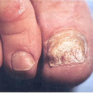 Грибок на ногтях лечится лазером