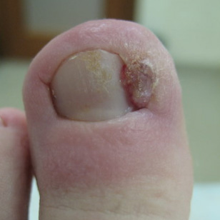 Как вылечить вросший ноготь у ребенка | Лечение вросшего ногтя народными средствами