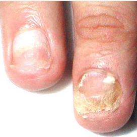 Деформация ногтей на руках