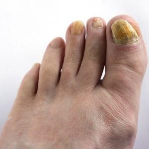 Микоз ногтей лечение