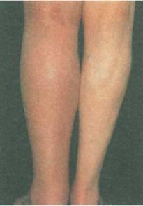 Тромбоз мезентериальных симптомы