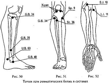 активные точки боли в суставах суставы