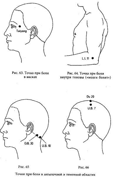 Во время секса болит теменная часть головы