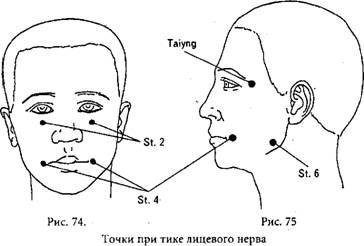 Точечный массаж от нервного тика