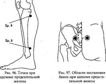 гомеопатия от глистов у детей отзывы комаровский