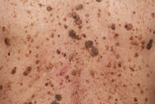 Кератоз кожи - фото и лечение