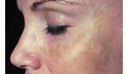 Рожа симптомы и лечение Как лечить рожу в домашних условиях