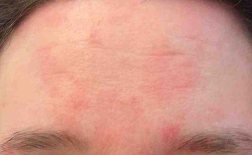 инфекционные болезни кожи фото