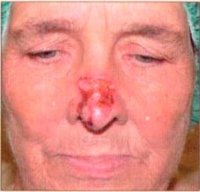 Уход за коже после рентгенотерапии