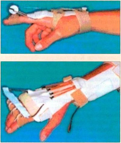Сшили сухожилие на пальце руки