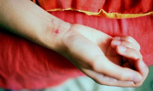 Также, в соответствии с данным сонником, порез из которого струится кровь, может быть знаком, предвещающим потерю жизненных сил.
