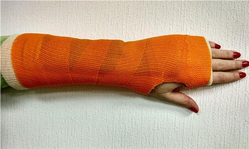 Приснилась что у меня искривленна рука, толи в гипсе, но кривая, я растроенна что придется так ходить.проснувшись подумала как хорошо что у меня не такая рука.